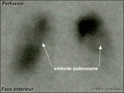 description radio pulmonaire