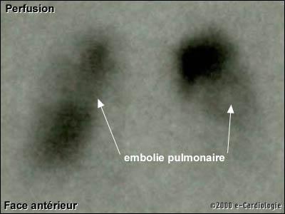 description radio pulmonaire